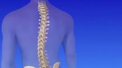 Scolioza: Care sunt cauzele apariției acestei maladii și cum putem să o prevenim